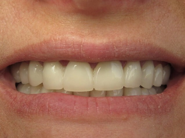Full Mouth Crowns After
