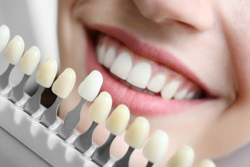 Teeth Color Comparison Photo