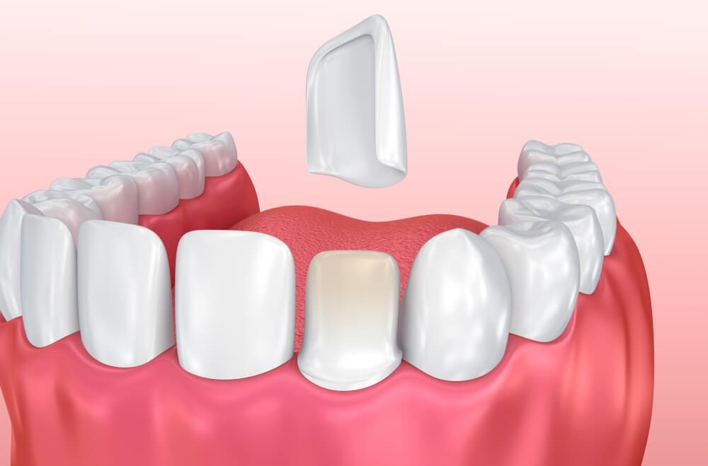Teeth Diagram Photo