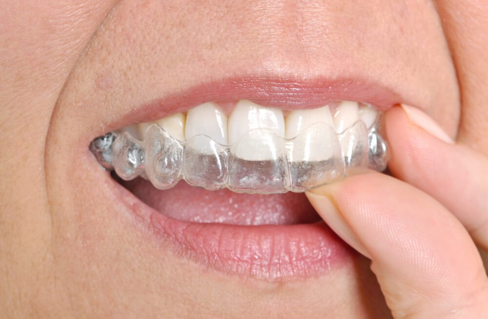 Invisalign Photo