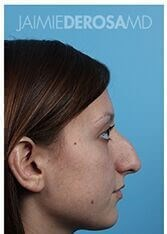 Rhinoplasty Lateral Before