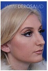 Rhinoplasty Oblique After