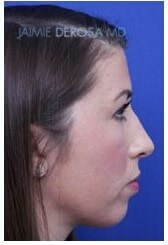 Rhinoplasty Lateral After