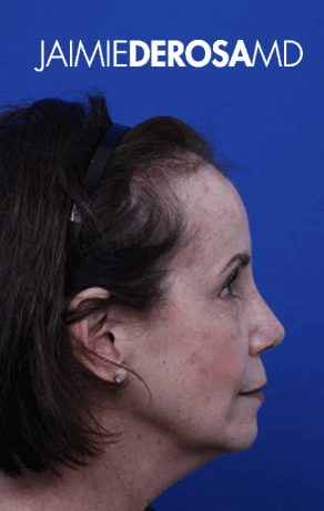 Rhinoplasty Lateral View After