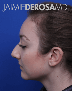 Rhinoplasty Lateral View Before