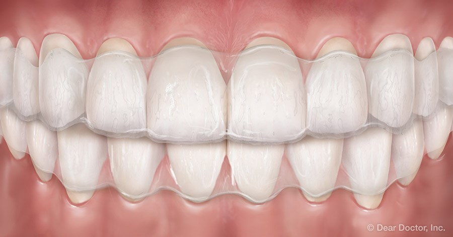 Clear aligners.
