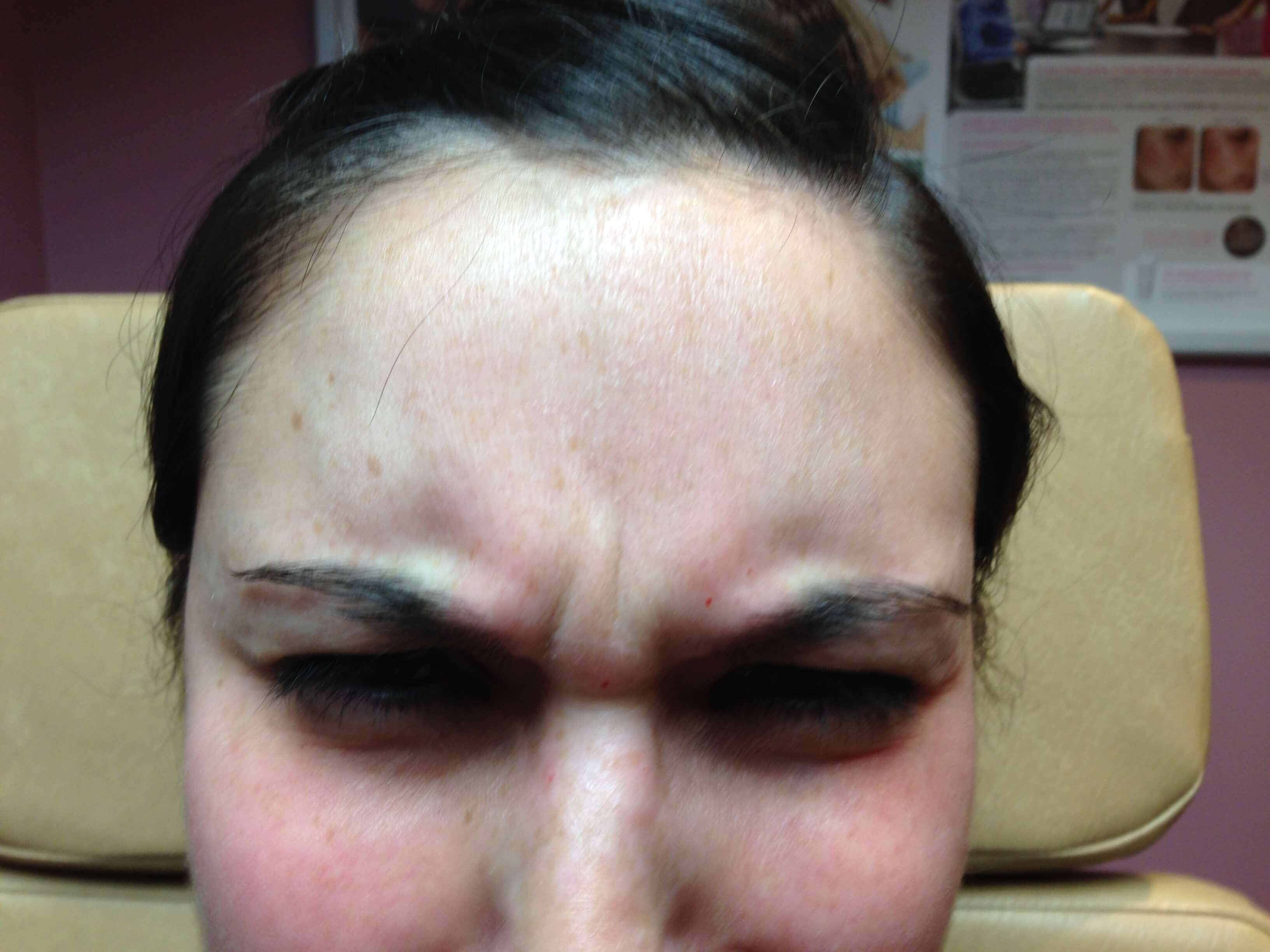 Botox for Forehead Before