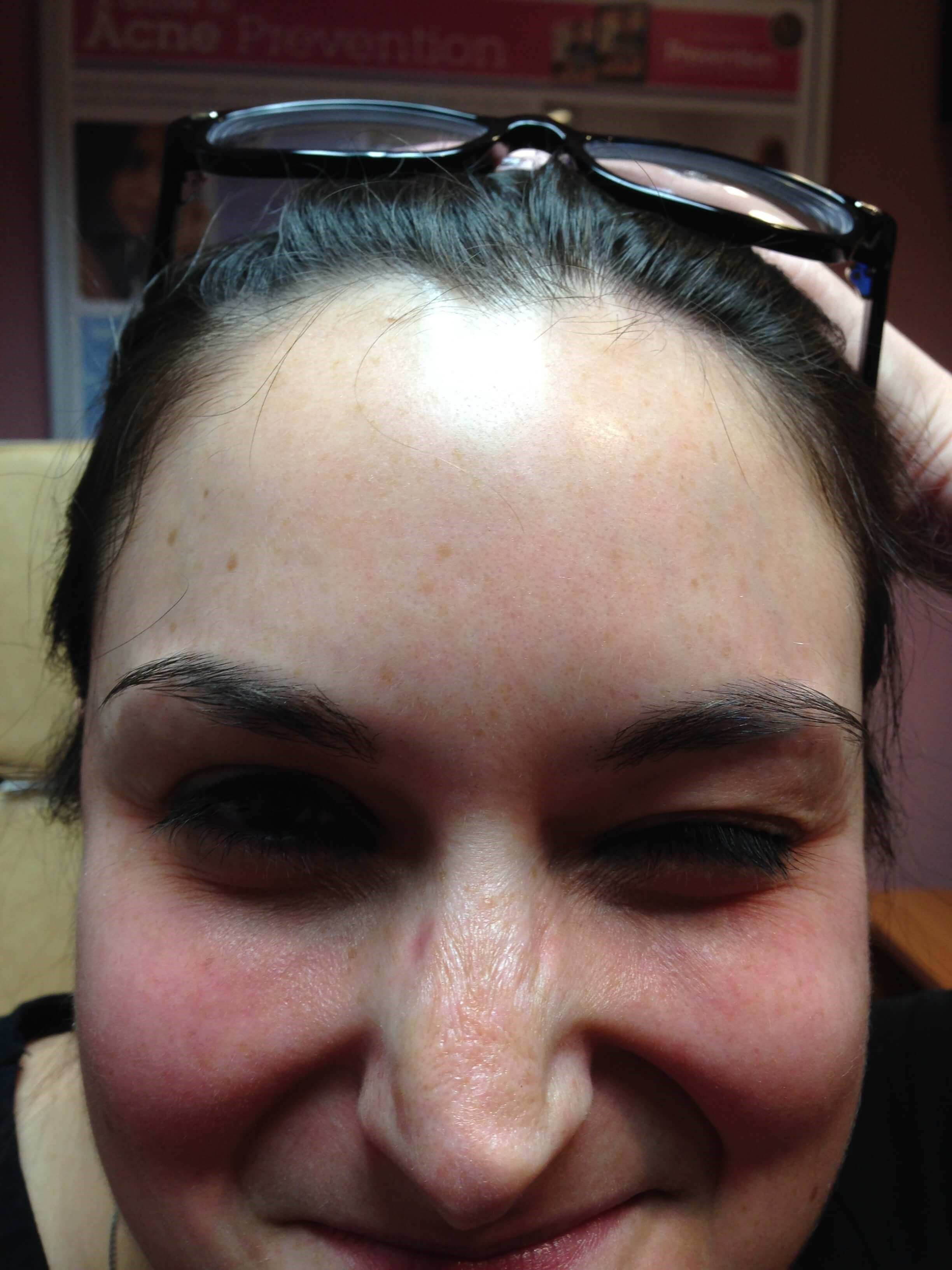 Botox for Forehead After