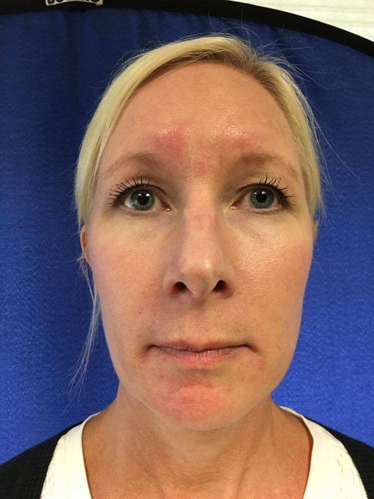 Before & After - Juvederm After