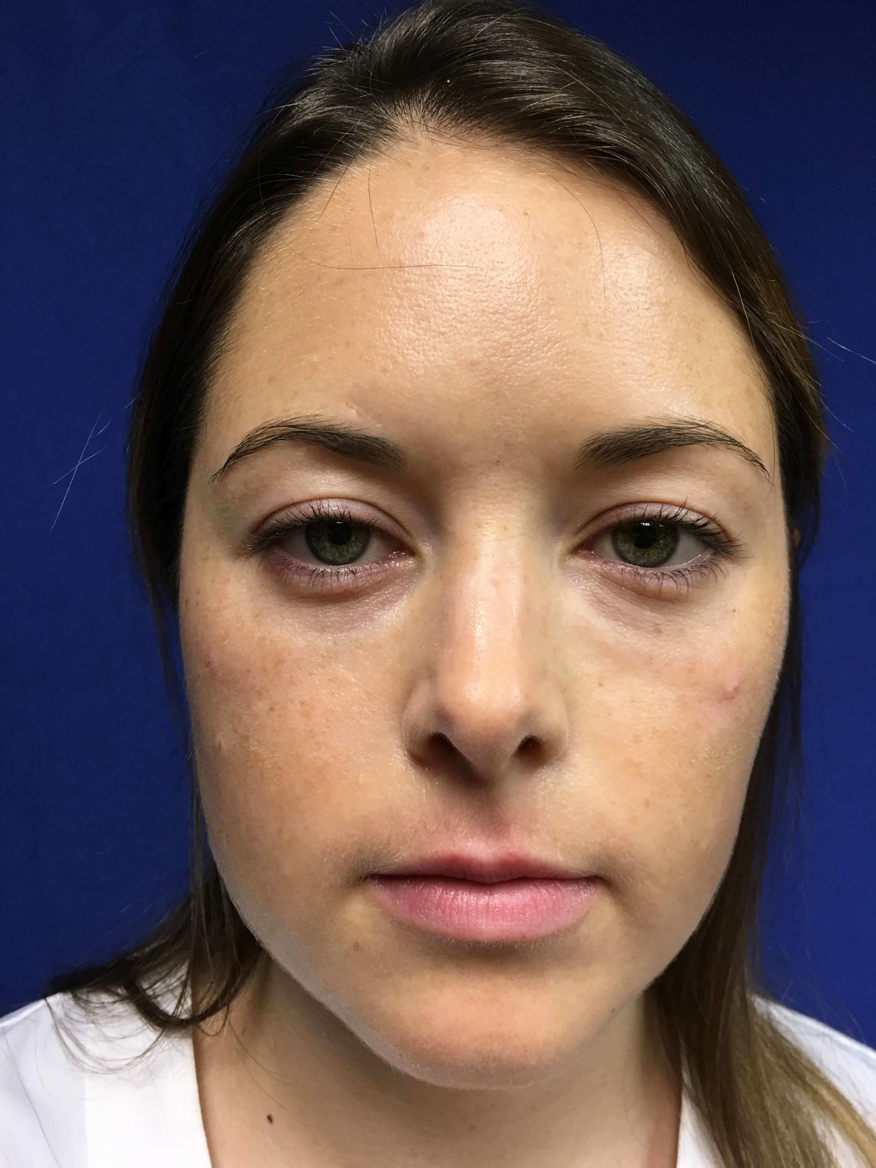 Before and After - Juvederm After