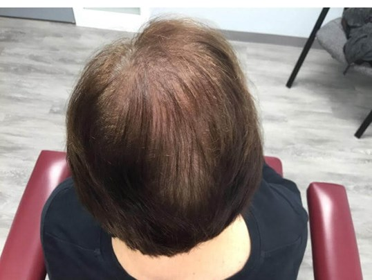 PRP Hair Therapy Before/After After