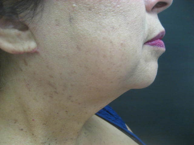 Neck Lift Side View- Right After