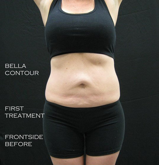 Bella Contour- Abdomen Before