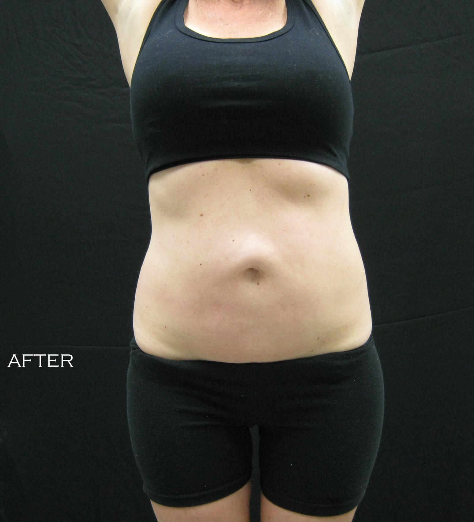 Bella Contour- Abdomen After