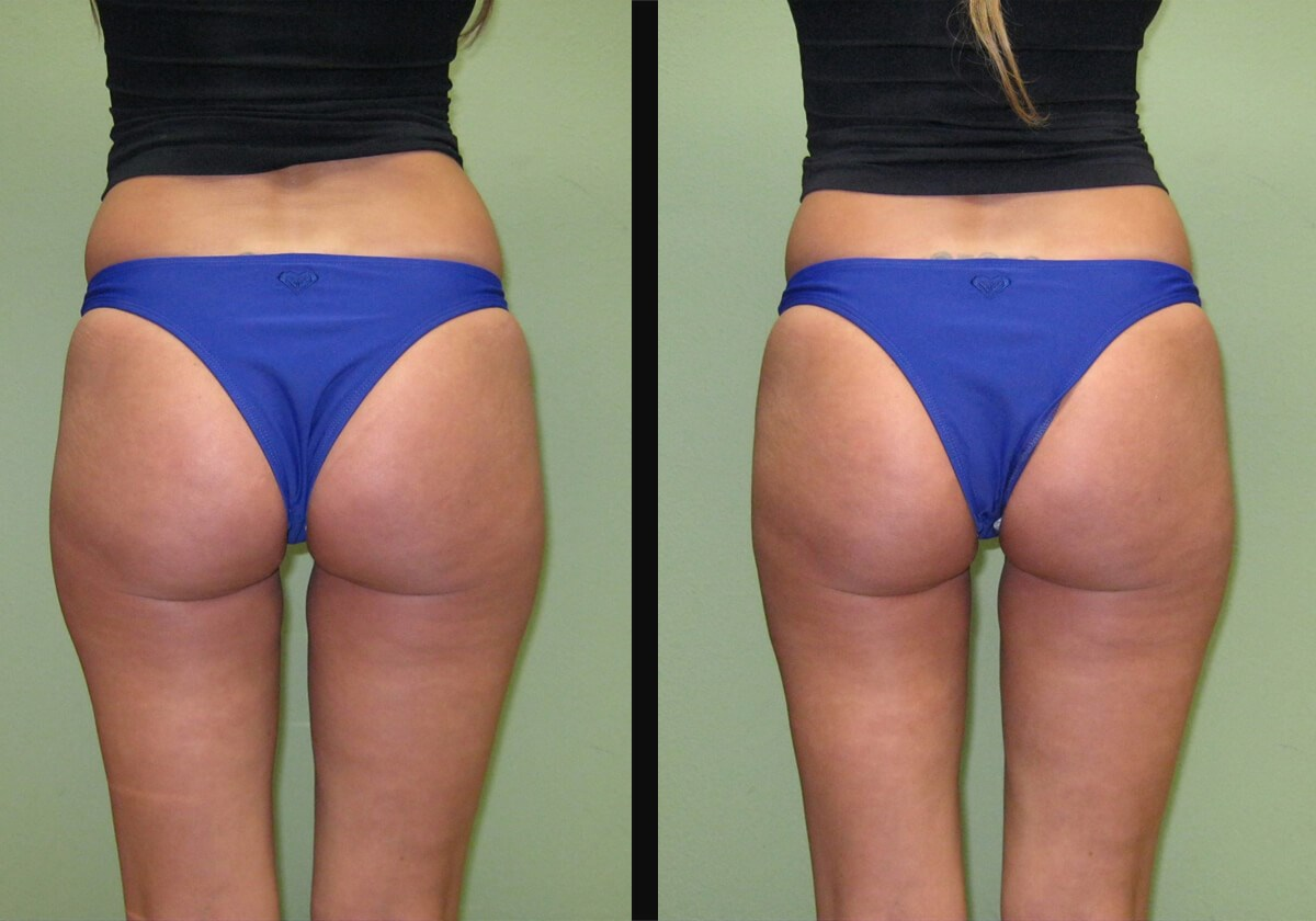 Non- Surgical Buttock Lift One Treatment Left Leg