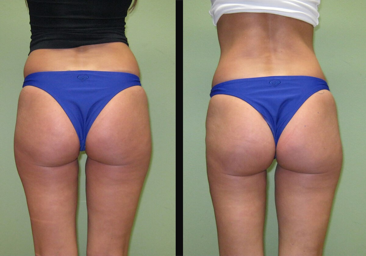 Non- Surgical Buttock Lift Five Treatments Left Leg
