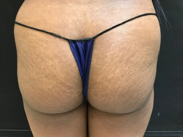Brazilian Butt Lift- Back View After