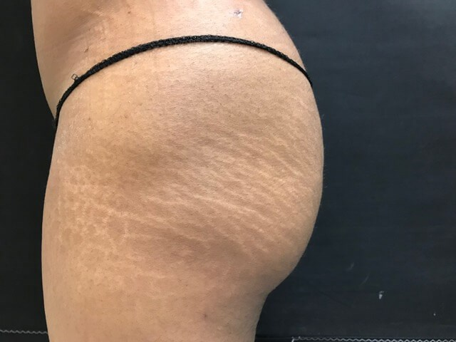Brazilian Butt Lift -Side View After