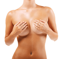 XL Breast Augmentation Image