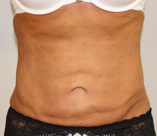 Abdomen Front After