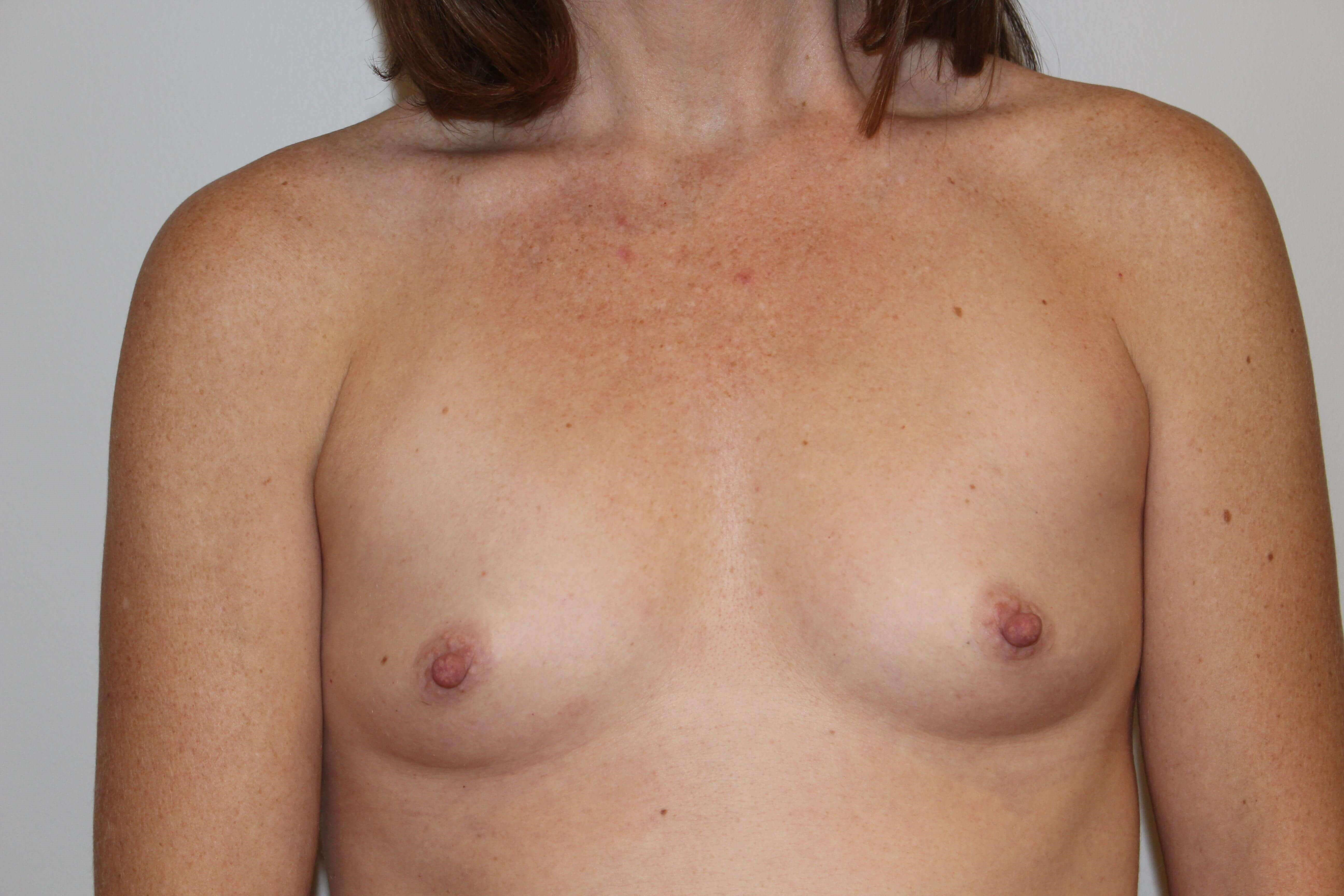 BA with 500cc Implants Before