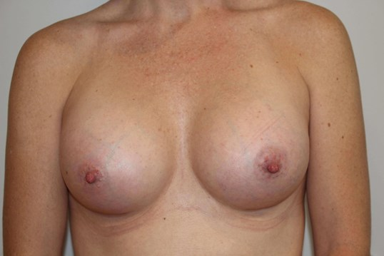 BA with 500cc Implants After