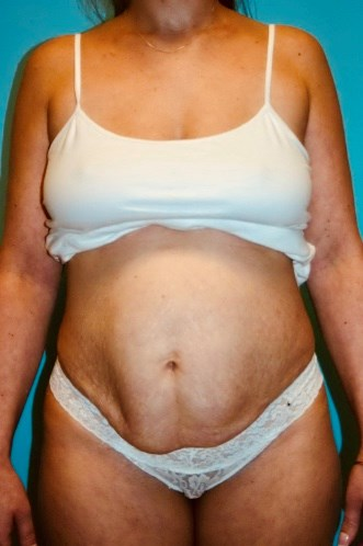 Full Abdominoplasty Before