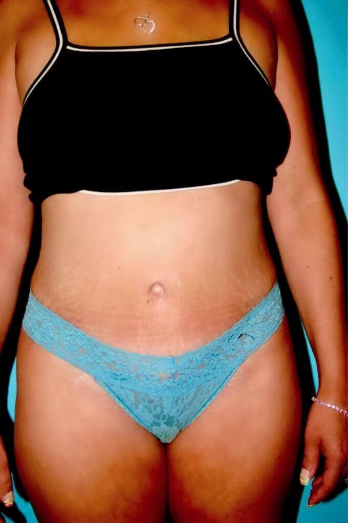 Full Abdominoplasty After