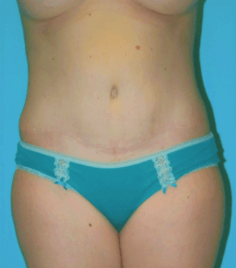 Front Full Abdominoplasty After