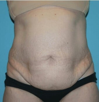 Front Full Abdominoplasty Before