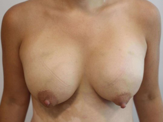 Breasts Before