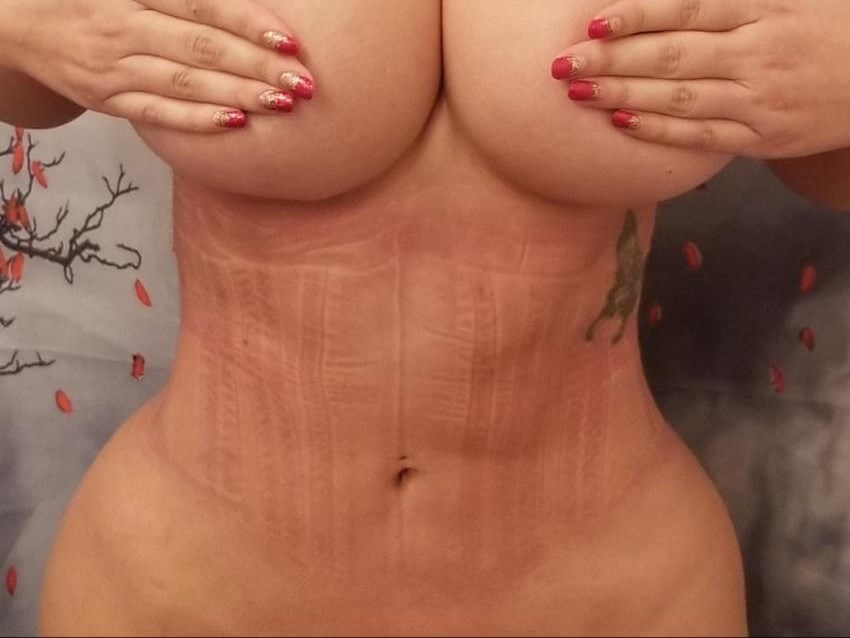 4 Months Post Rib Removal After - Front