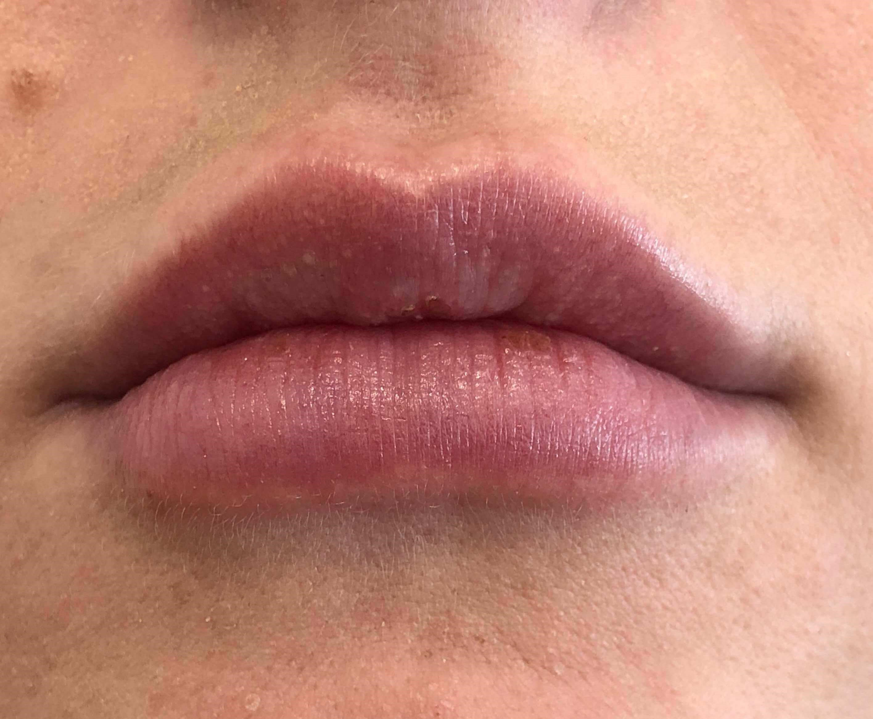 Lip Filler After