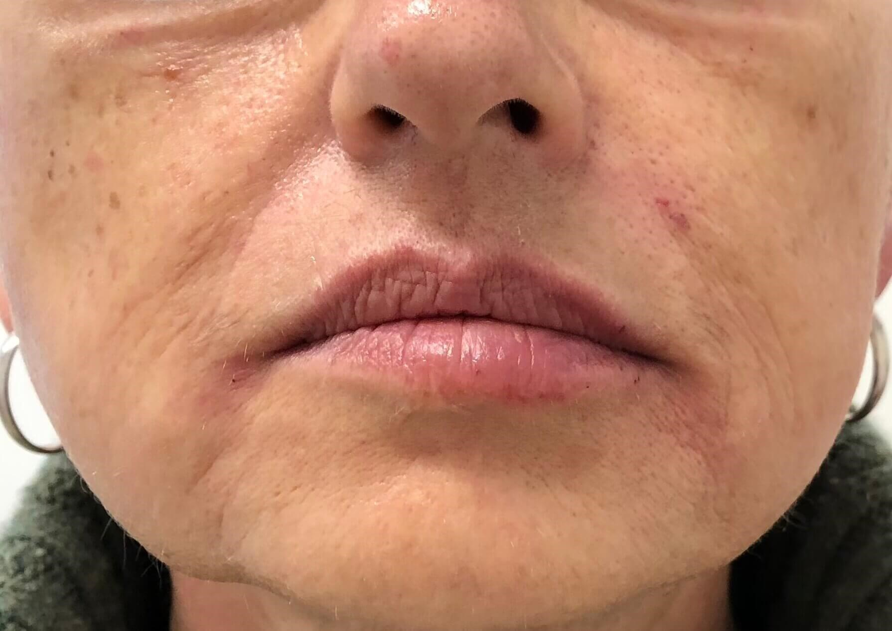 Lower Face Filler After