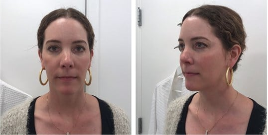 Lower Cheek Fat Reduction Before