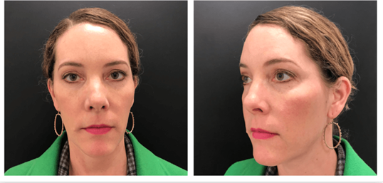 Lower Cheek Fat Reduction After