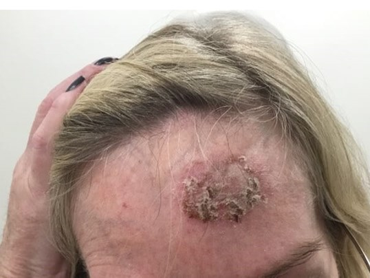 Before And After Skin Cancer Screenings Skin Cancer Topical Cancer Treatment Photos