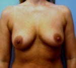 Breast Enhancement Front Before