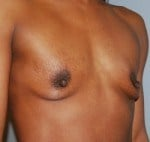 Breast Enhancement Side Before