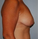 Breast Lift Side Before