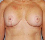 Breast Lift Front After