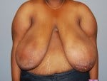 Breast Reduction Front Before