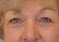 Eyelid Lift Front Before