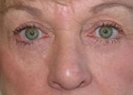 Eyelid Lift Front After