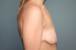 Breast Aug With Lift Side Before