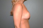 Breast Aug With Lift Side After