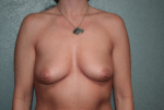 Breast Aug With Lift Front Before