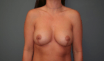 Breast Aug With Lift Front After