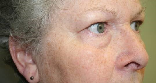 Eyelid Surgery Side After