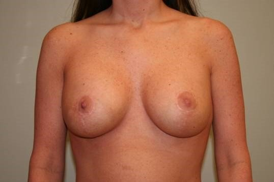 Breast Asymmetry Front After